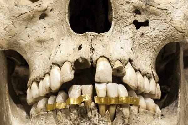 کاربرد طلا در دندانپزشکی